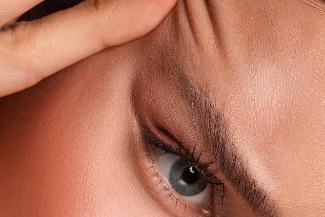 Что такое брау-лифтинг инужен ли он вашим бровям?