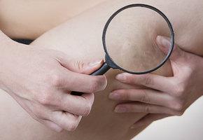 Когда пора к флебологу: 5 признаков проблем с венами на ногах