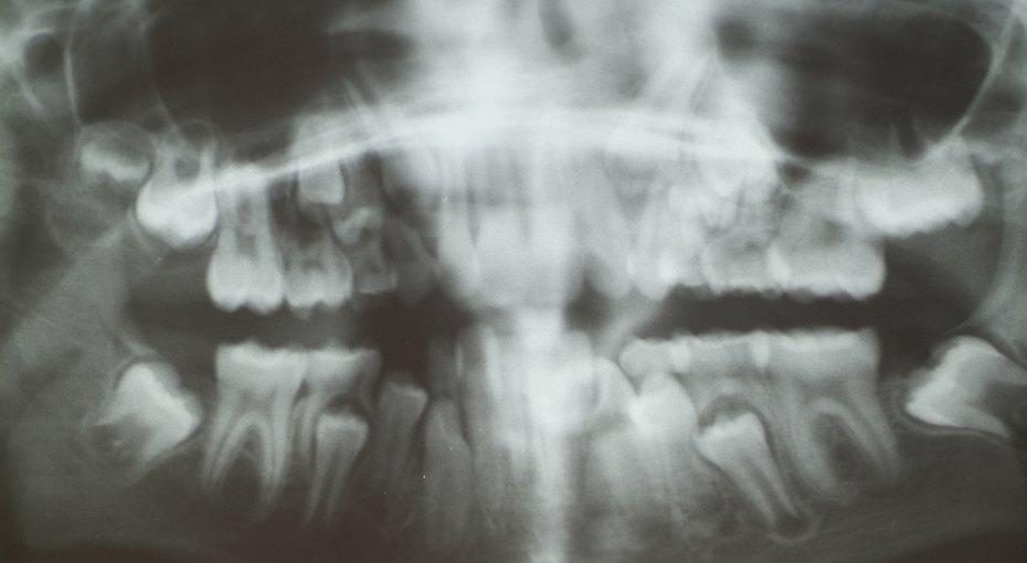 Врачи удалили семилетнему мальчику 526 лишних зубов