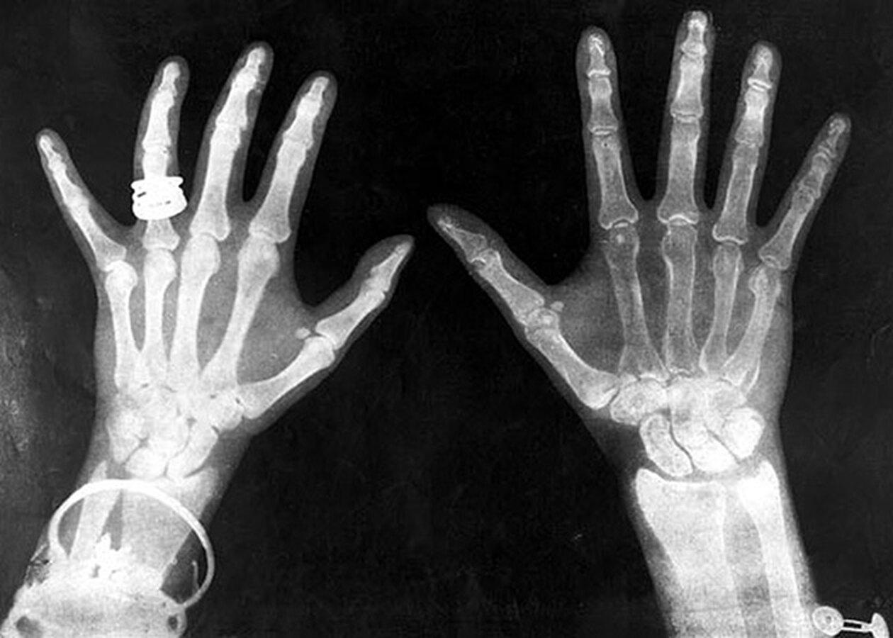 рентгеновский снимок кистей рук