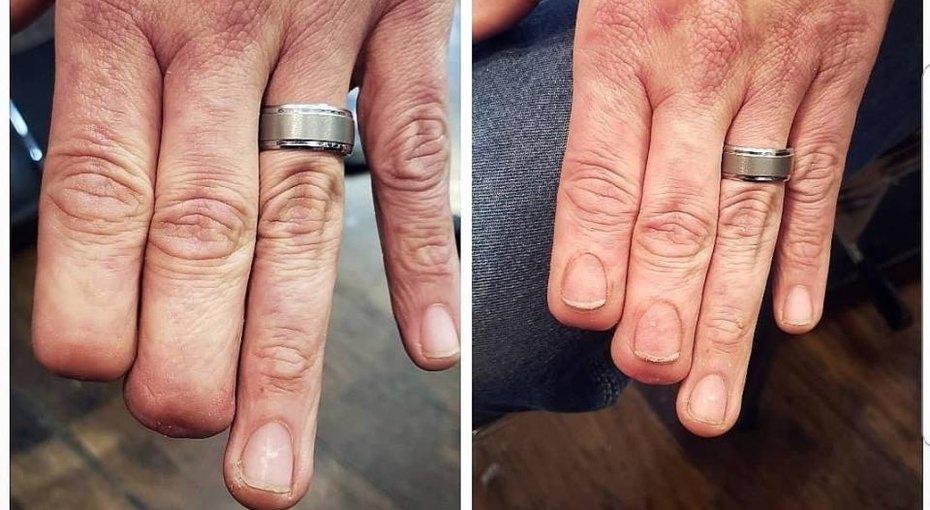 Тату-мастер создает реалистичные татуировки женщинам, пережившим онкологию иампутацию