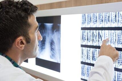 Грыжа диска: нейрохирург отвечает навсе вопросы опричинах, симптомах, операции