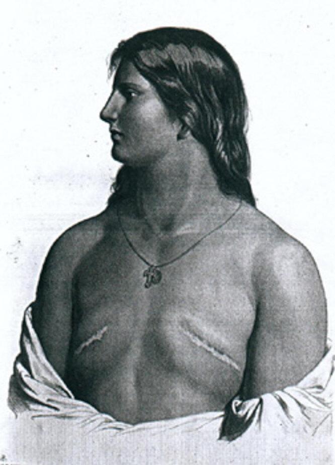 Оскоплённая женщина, у которой была удалена грудь