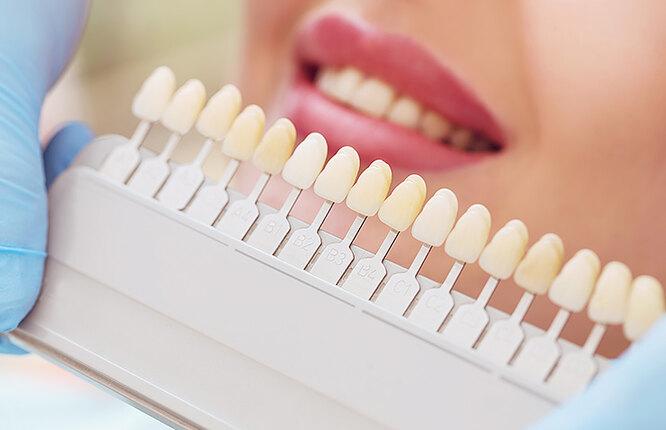 палетка с оттенками для зубов