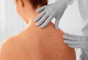 Рак кожи: 7 участков тела, которые мы не защищаем от УФ