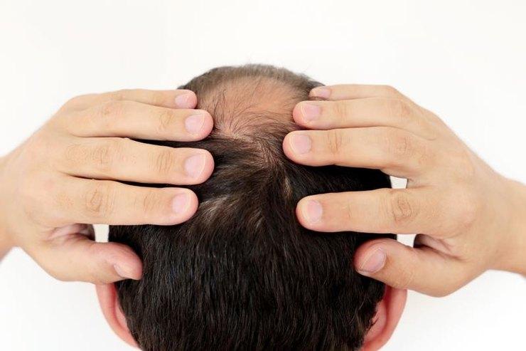 Почему лысеют мужчины?