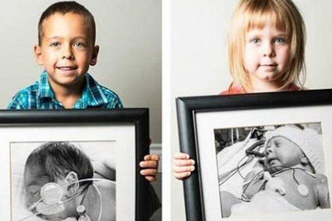 Выросшие дети, родившиеся раньше срока, показали свои первые фото