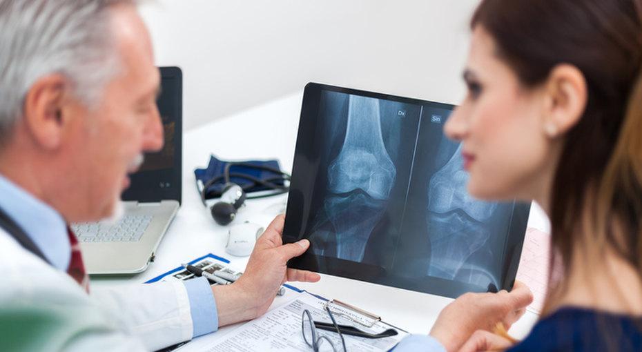 Как недопустить остеопороза? 3 главных правила профилактики