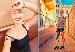 «Отношусь к раку, как к насморку»: история женщины, которая несколько раз победила рак