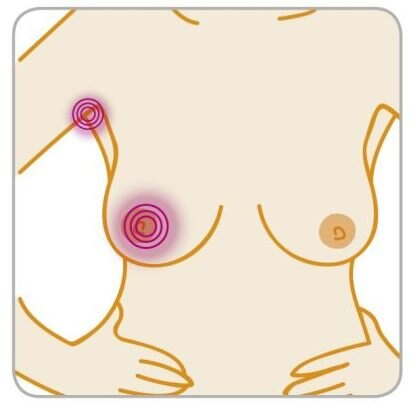 Image: BREAST CANCER CARE