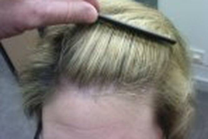 Или талия, или волосы?