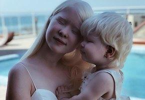 «Врачи были в шоке!»: невероятная история двух сестер-альбиносов из Казахстана
