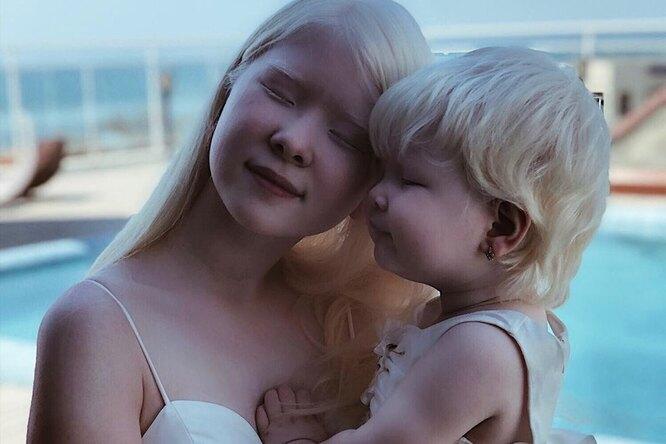«Врачи были вшоке!»: невероятная история двух сестер-альбиносов изКазахстана