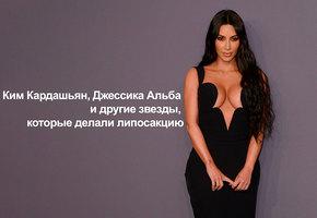 Ким Кардашьян, Джессика Альба и другие звезды, которые делали липосакцию (видео)