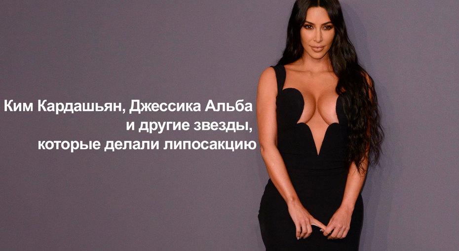 Ким Кардашьян, Джессика Альба идругие звезды, которые делали липосакцию (видео)