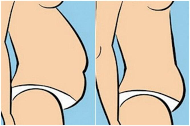 5 видов женских животиков иупражнения длякаждого: вы точно похудеете!