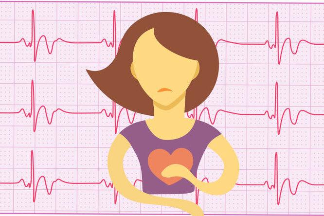 Инфаркт «помолодел»! Как избежать проблем ссердцем