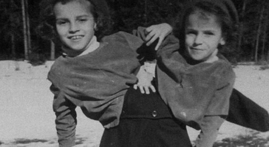 Страшная судьба: история первых сиамских близнецов вСССР