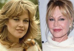5 актрис, загубивших карьеру пластическими операциями (видео)