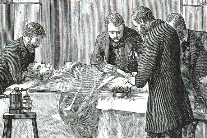 Женское обрезание: почему эта операция была популярна вВикторианской Англии