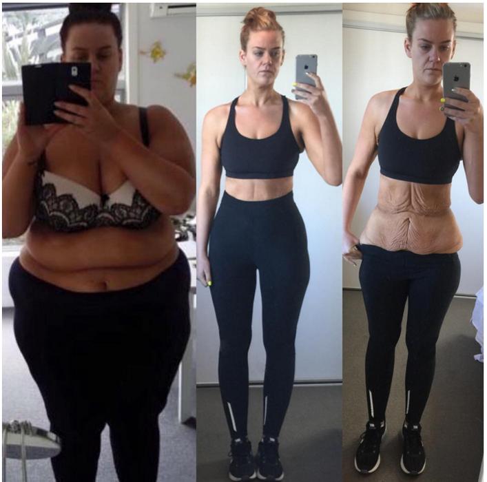 Примеры Сбросить Вес. Как похудеть в домашних условиях