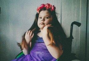 «Девочка-русалка»: как живет девочка со spina bifida