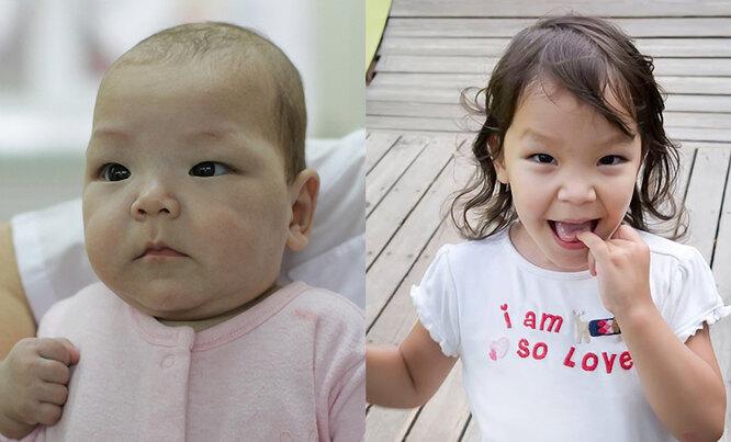 Ребенок до и после детского дома