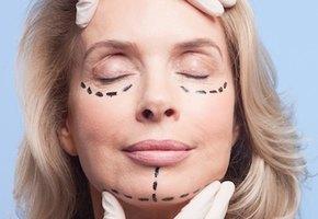 Правда или миф: 5 заблуждений о пластической хирургии