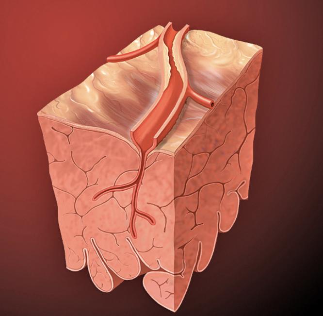 Атеросклероз и бляшки