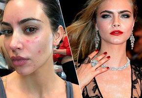 Звезды, которые не комплексуют из-за кожных заболеваний (видео)