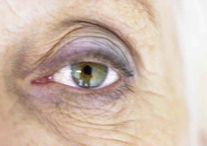 слепота, лечение роговицы