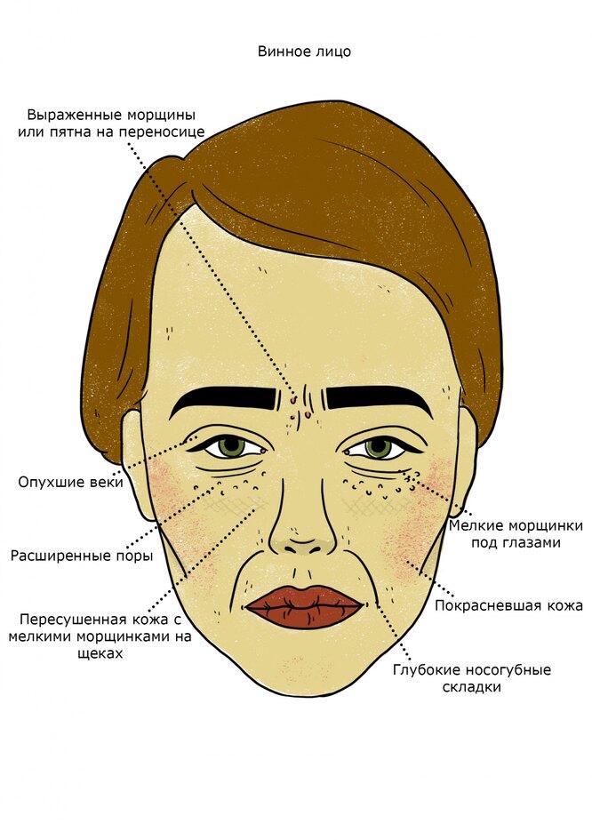 Как сахар, алкоголь и глютен влияют на кожу
