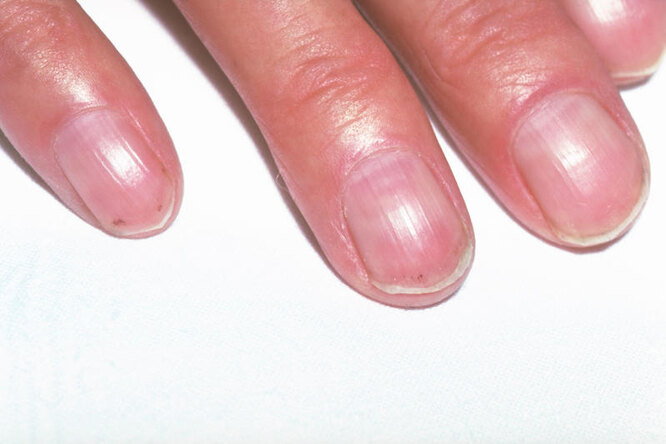 пальцы гиппократа, пальцы барабанные палочки