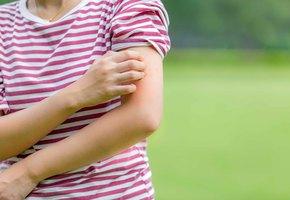 Аллергия на комаров: 6 признаков, что это ваш случай