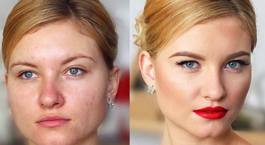 До ипосле: как макияж может преобразить проблемную кожу