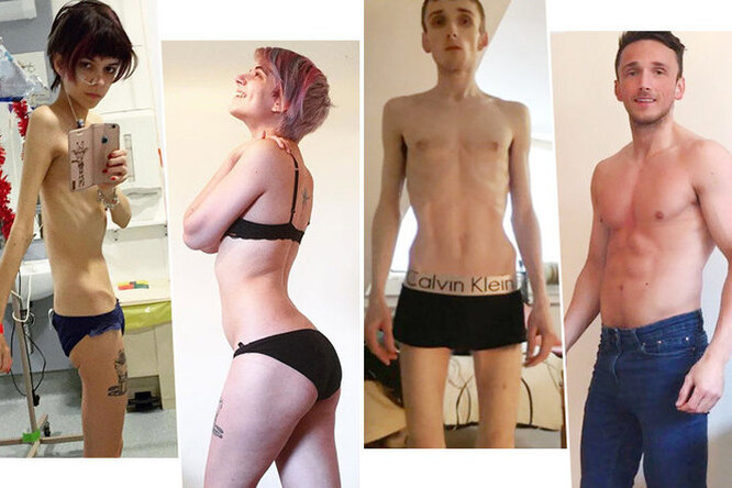«Себя можно спасти»: 10 историй людей, которым удалось выжить после анорексии