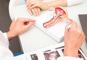Удаление матки: 6 фактов о самой «тайной» женской операции