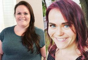 Похудеть с помощью скальпеля: женщина сбросила 60 кг после операции на желудке