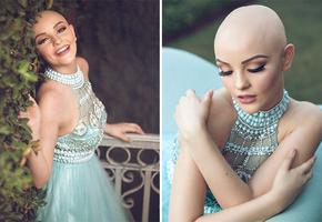 «Рак не помешает мне быть принцессой»