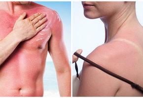 Как лечить солнечные ожоги холодным молоком