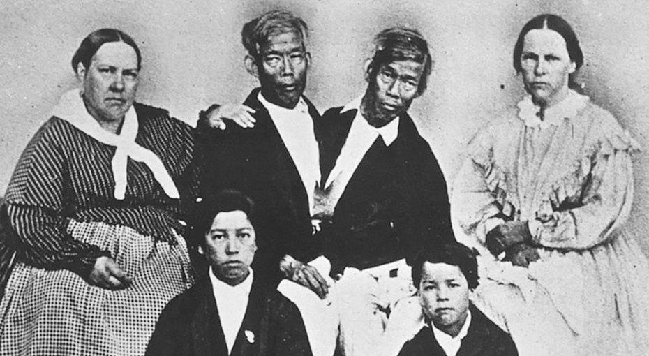 Цирк, семья и22 ребенка: история сиамских близнецов